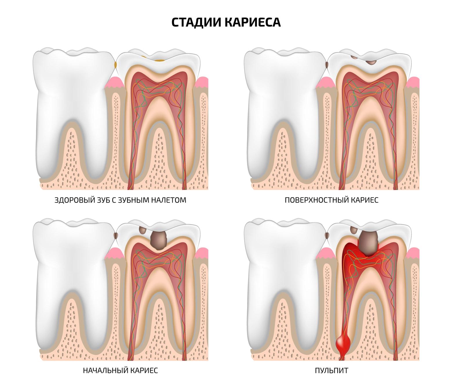 034882f4498d4 Основные причины возникновения и развития болезни зубов: